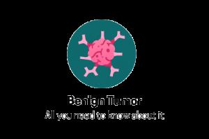 Uterine Fibroids: A Benign Tumour