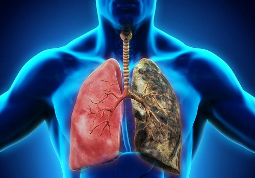 COPD - A Chronic And Serious Respiratory Disorder