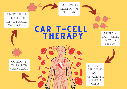 Cure Cancer, Say Yes To The Car T-Cell Therapy