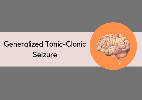 Ever Heard Of Generalized Tonic-Clonic Seizure