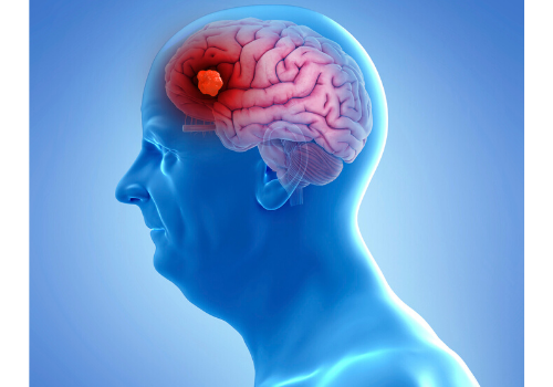 Ever Wondered How Tumours Develop In Brain? Read On!