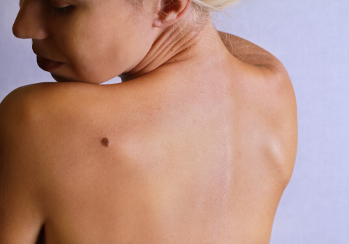 Fighting Melanoma - Here's What You Should Know!