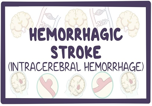 Intracerebral Hemorrhage - A Life Threatening Disease