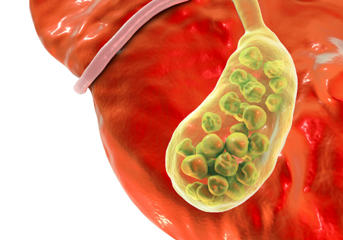 Suffering From Improper Liver Function? It Could Be GallStones