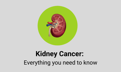 Kidney Cancer: Symptoms, Causes, Diagnoses, Treatment & Prevention