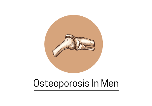 Men Suffer From Osteoporosis Too