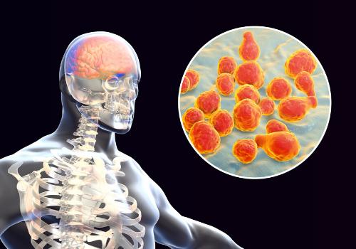 Things To Know About Meningitis & Septicaemia
