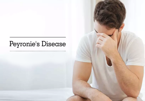 Peyronie's Disease - Causes, Symptoms, Diagnosis, And Treatment