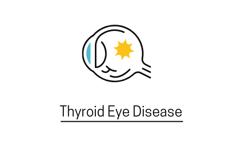 Thyroid Eye Disease : Symptoms Of Thyroid Eye Disease