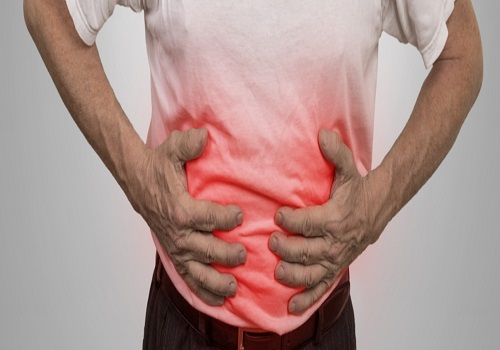 Ulcerative Colitis And Its Associated Complications