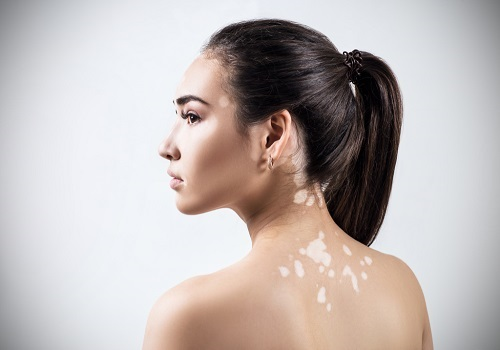 Understanding The Effects Of Vitiligo